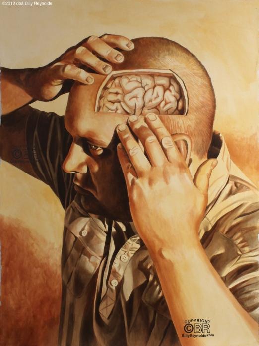 Brain Exposed copy